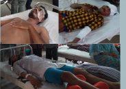 সড়ক দুর্ঘটনায় বরিশাল বিশ্ববিদ্যালয়ের ৩ ছাত্র আহত